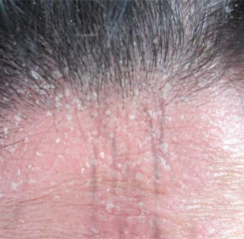 头部牛皮癣治疗方法_头部牛皮癣有哪些症状?