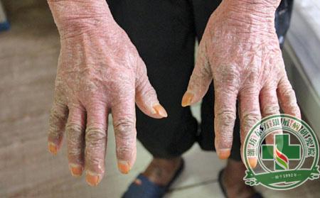 男性银屑病患者如何做可以护理