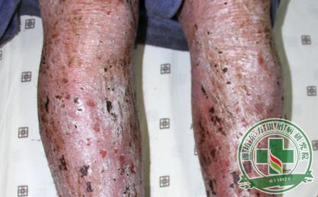 红皮性牛皮癣是牛皮癣中严重的一种,要引起重视